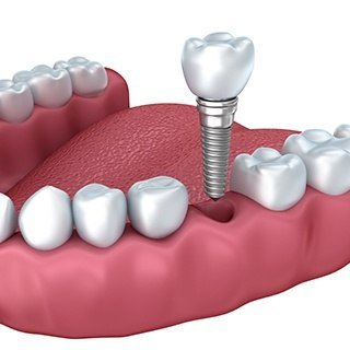 dental implant illustration in gums