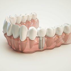 dental implants in model