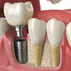 top dental implant example