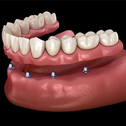 Digital model of an implant-retained denture.