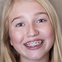 blonde girl with multiple colored braces