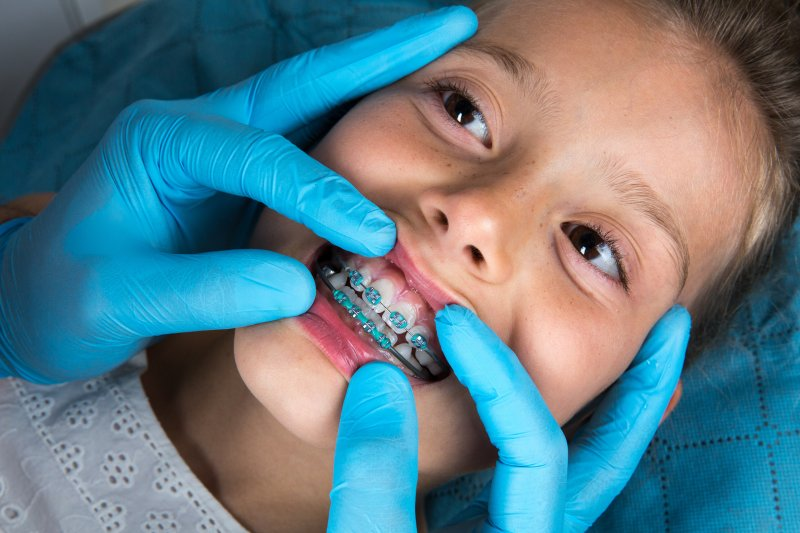 Closeup of young girl at orthodontist's appointment
