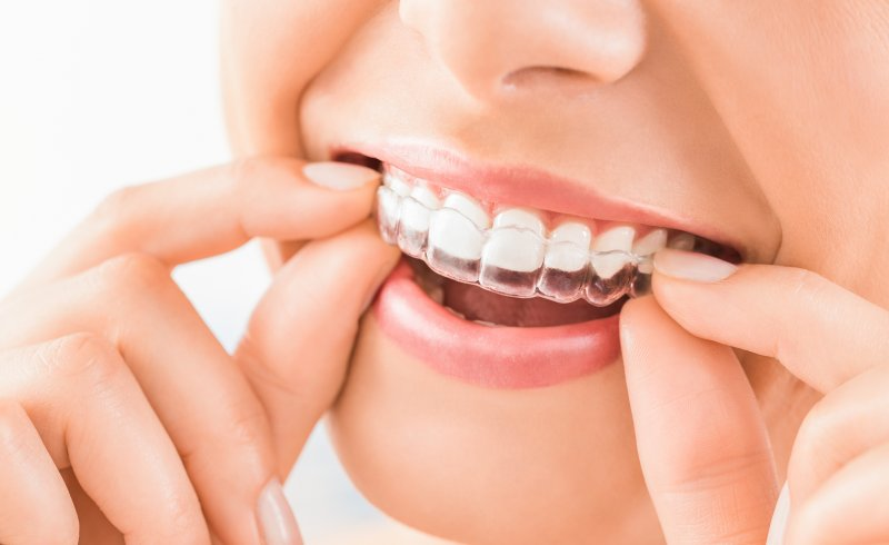 young girl putting Invisalign aligner on